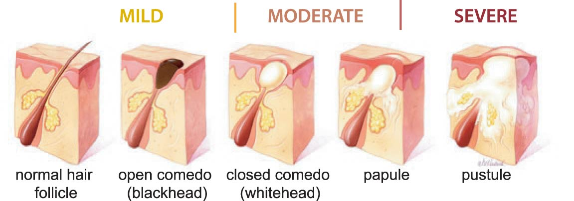 acne_stages_EN